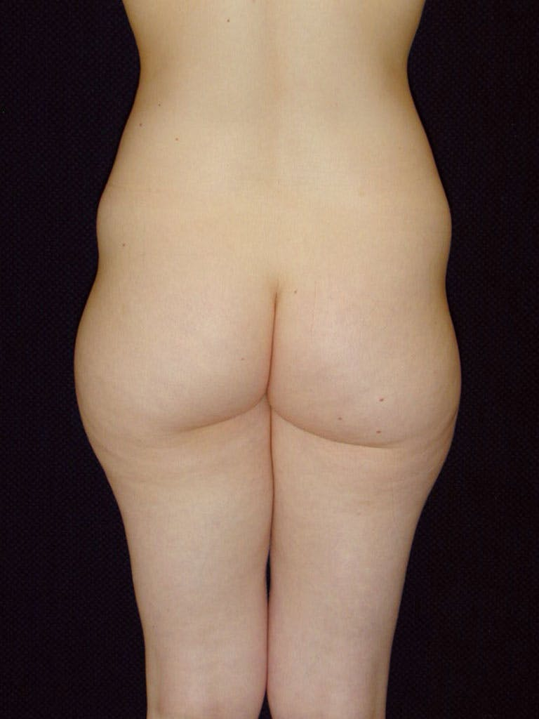 Liposuction Gallery - Patient 39226184 - Image 3
