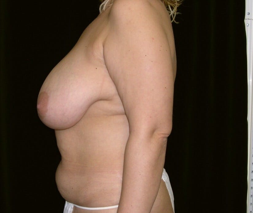 Mommy Makeover Gallery - Patient 39226185 - Image 7