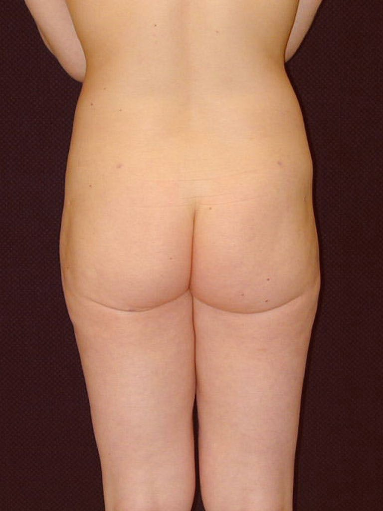 Liposuction Gallery - Patient 39226184 - Image 4