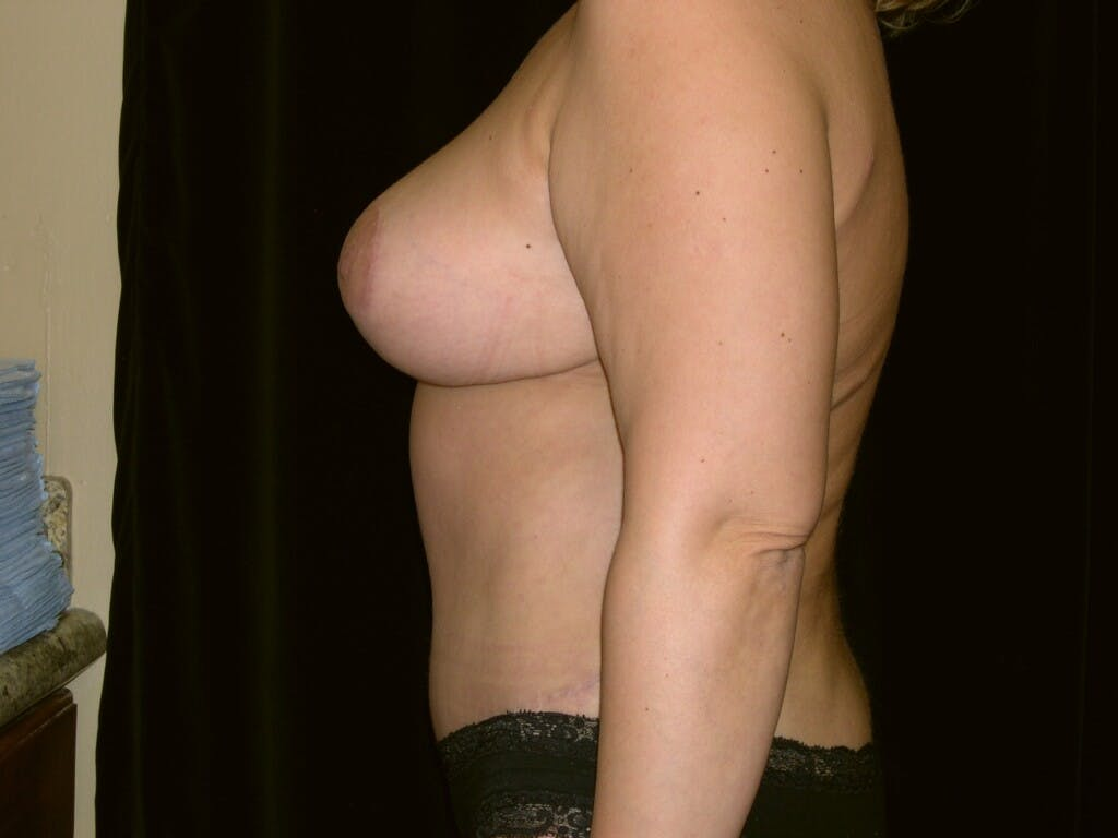 Mommy Makeover Gallery - Patient 39226185 - Image 8