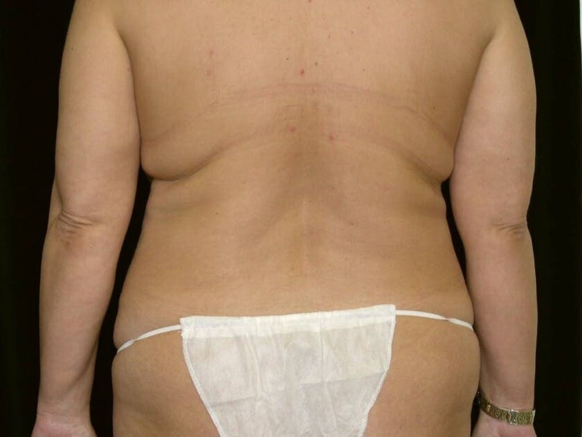 Mommy Makeover Gallery - Patient 39226185 - Image 9