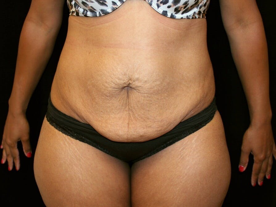 Tummy Tuck Gallery - Patient 39226204 - Image 1