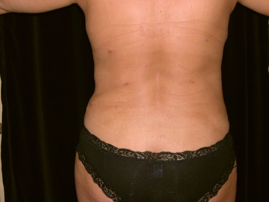 Mommy Makeover Gallery - Patient 39226185 - Image 10