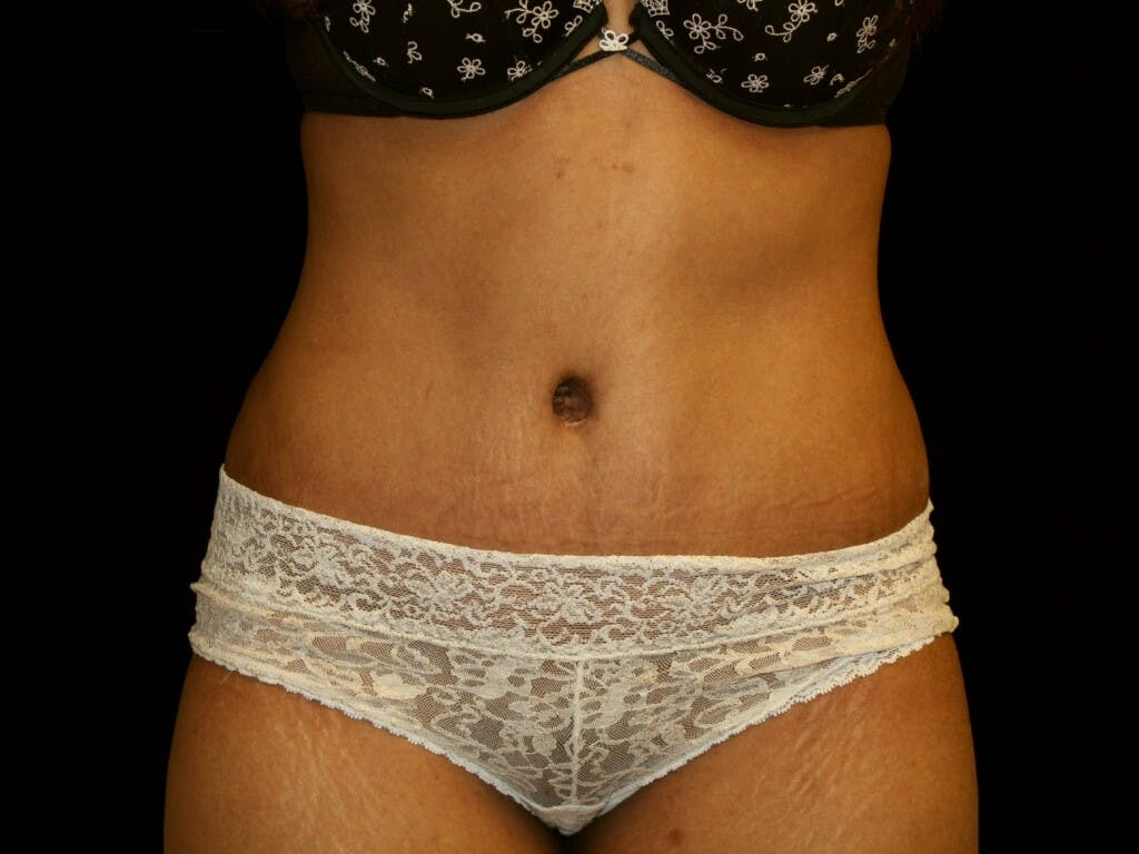 Tummy Tuck Gallery - Patient 39226204 - Image 2