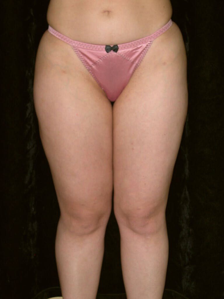 Liposuction Gallery - Patient 39226203 - Image 1