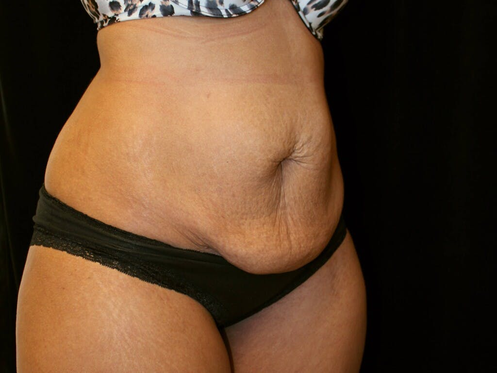 Tummy Tuck Gallery - Patient 39226204 - Image 3
