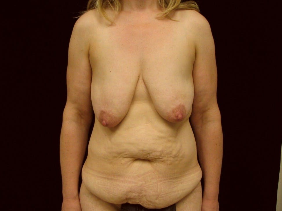 Mommy Makeover Gallery - Patient 39227022 - Image 1