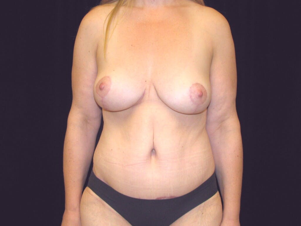 Mommy Makeover Gallery - Patient 39227022 - Image 2