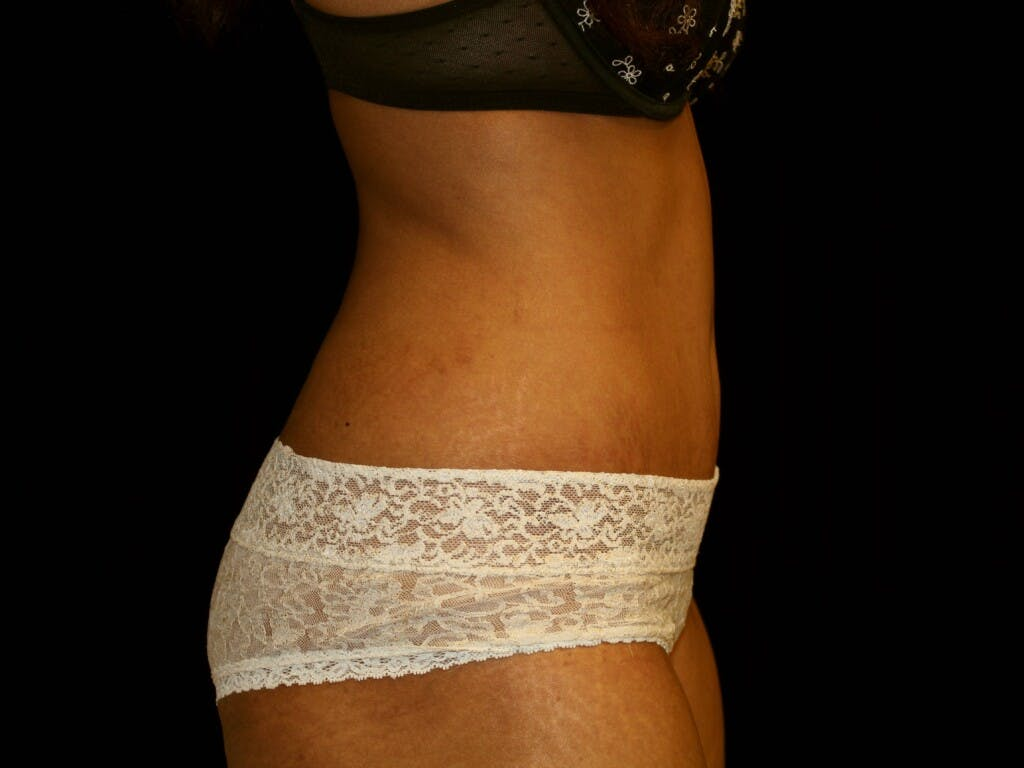 Tummy Tuck Gallery - Patient 39226204 - Image 6