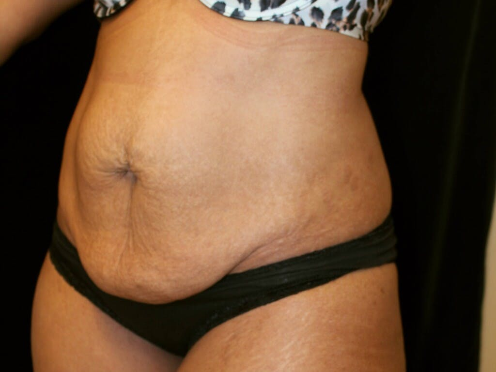Tummy Tuck Gallery - Patient 39226204 - Image 7