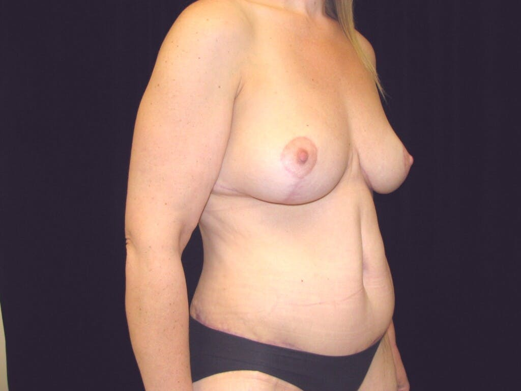 Mommy Makeover Gallery - Patient 39227022 - Image 4