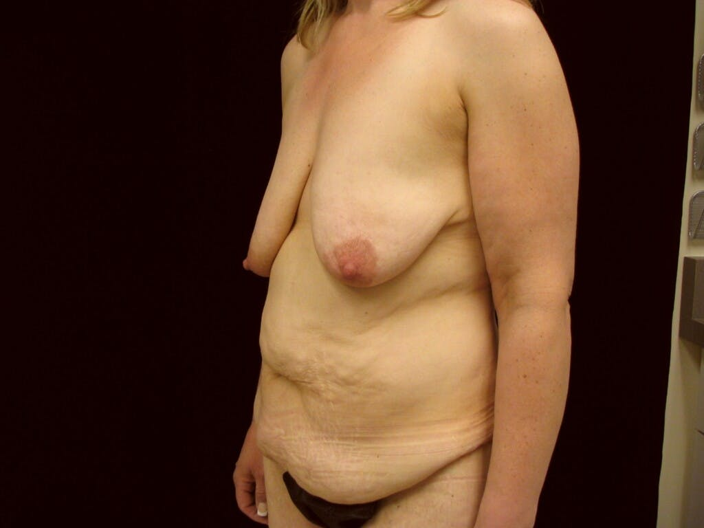 Mommy Makeover Gallery - Patient 39227022 - Image 7