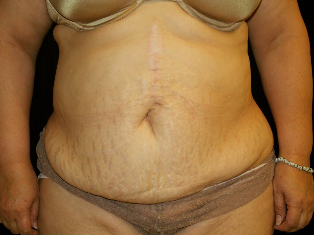 Tummy Tuck Gallery - Patient 39227029 - Image 1