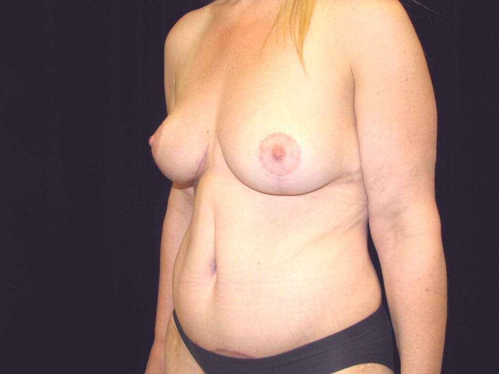 Mommy Makeover Gallery - Patient 39227022 - Image 8