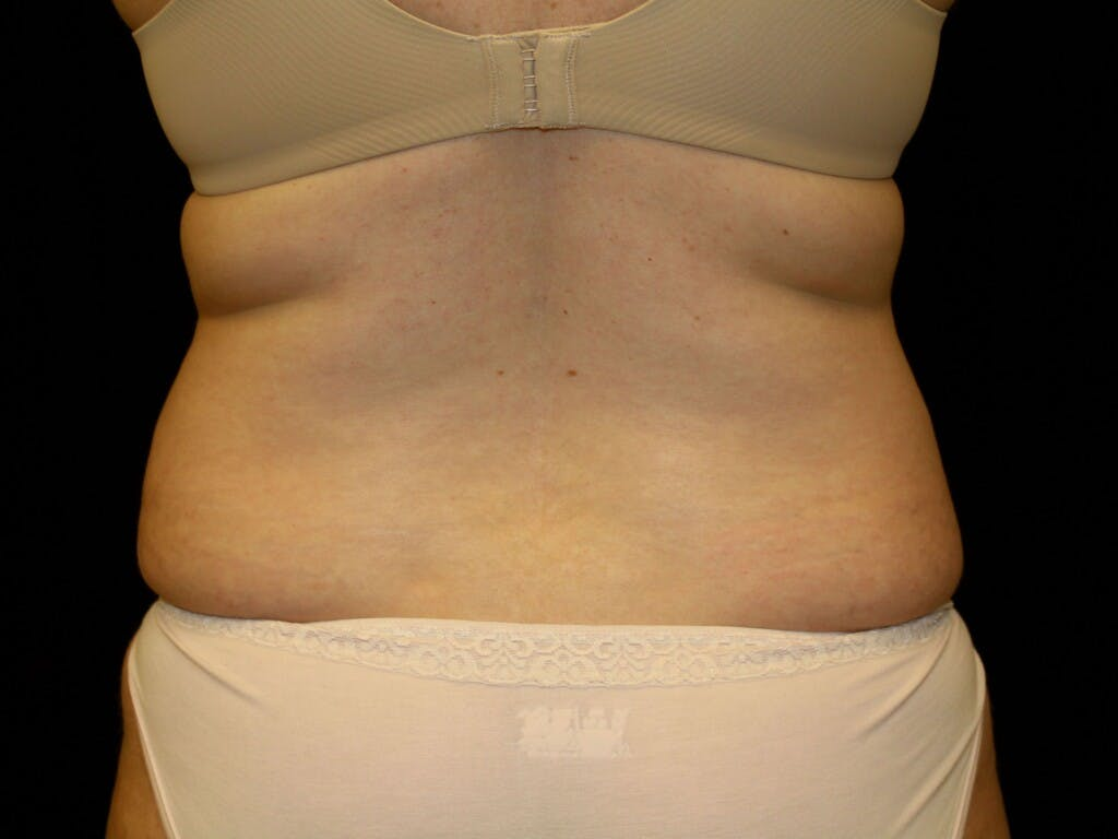Liposuction Gallery - Patient 39227023 - Image 1