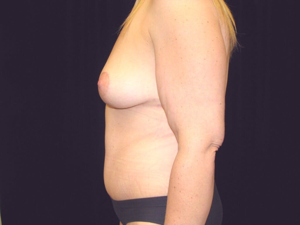 Mommy Makeover Gallery - Patient 39227022 - Image 10