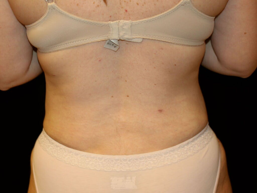 Liposuction Gallery - Patient 39227023 - Image 2