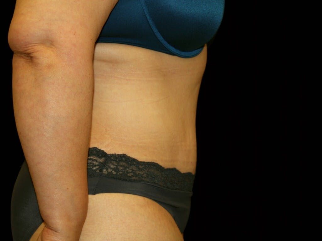 Tummy Tuck Gallery - Patient 39227029 - Image 4