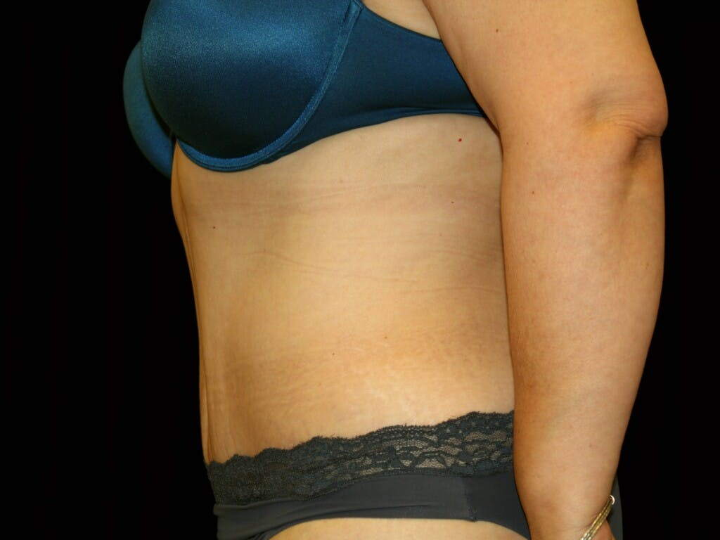 Tummy Tuck Gallery - Patient 39227029 - Image 6