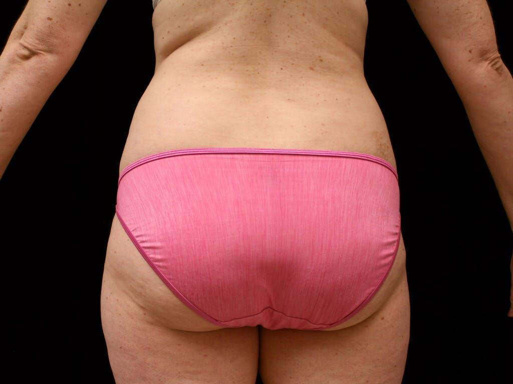 Liposuction Gallery - Patient 39227030 - Image 1