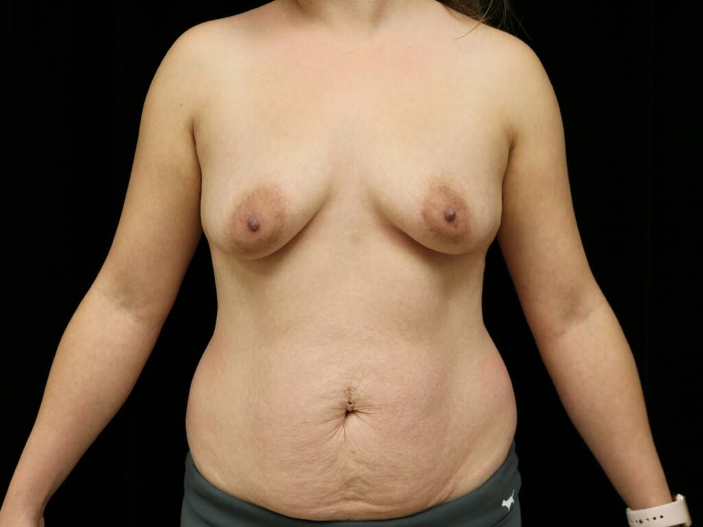 Mommy Makeover Gallery - Patient 39227035 - Image 1