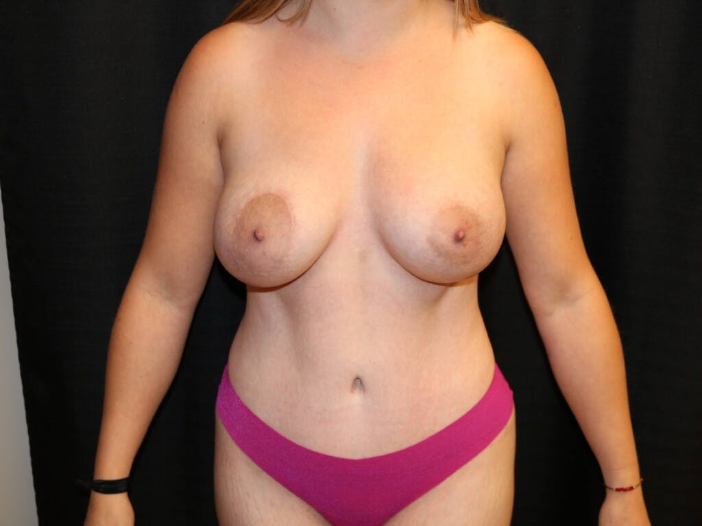 Mommy Makeover Gallery - Patient 39227035 - Image 2