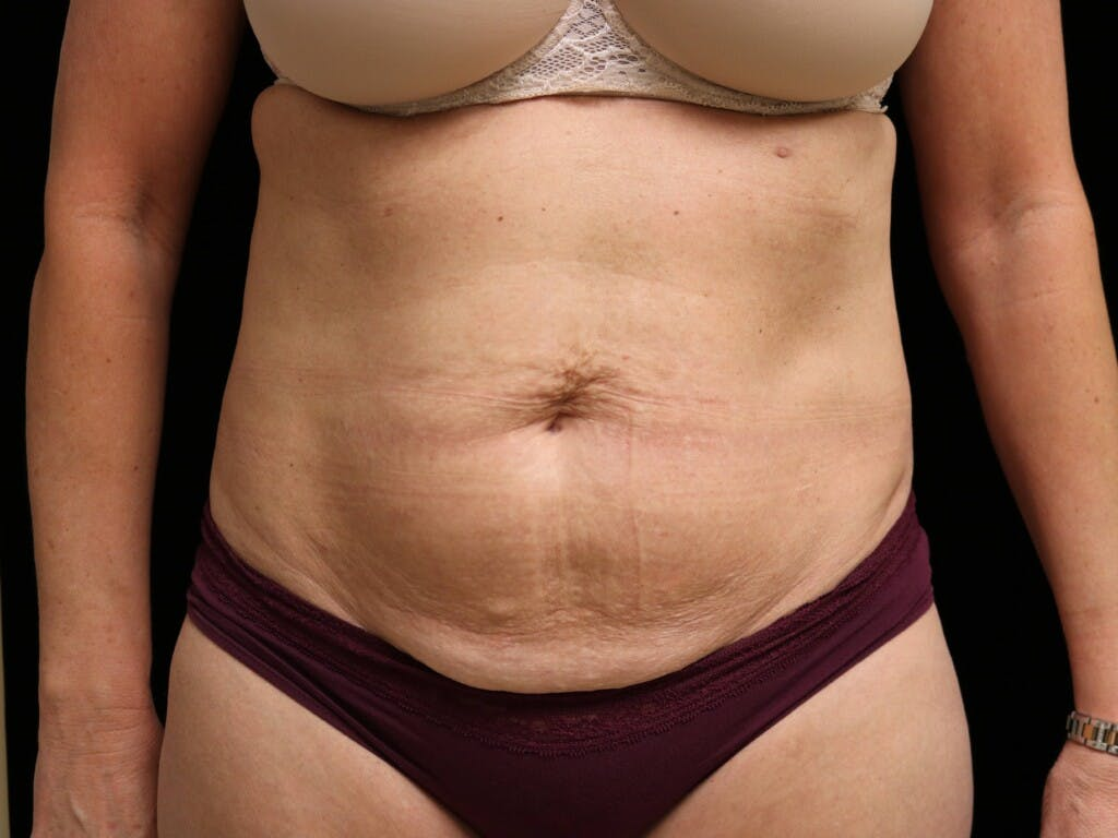 Tummy Tuck Gallery - Patient 39227039 - Image 1