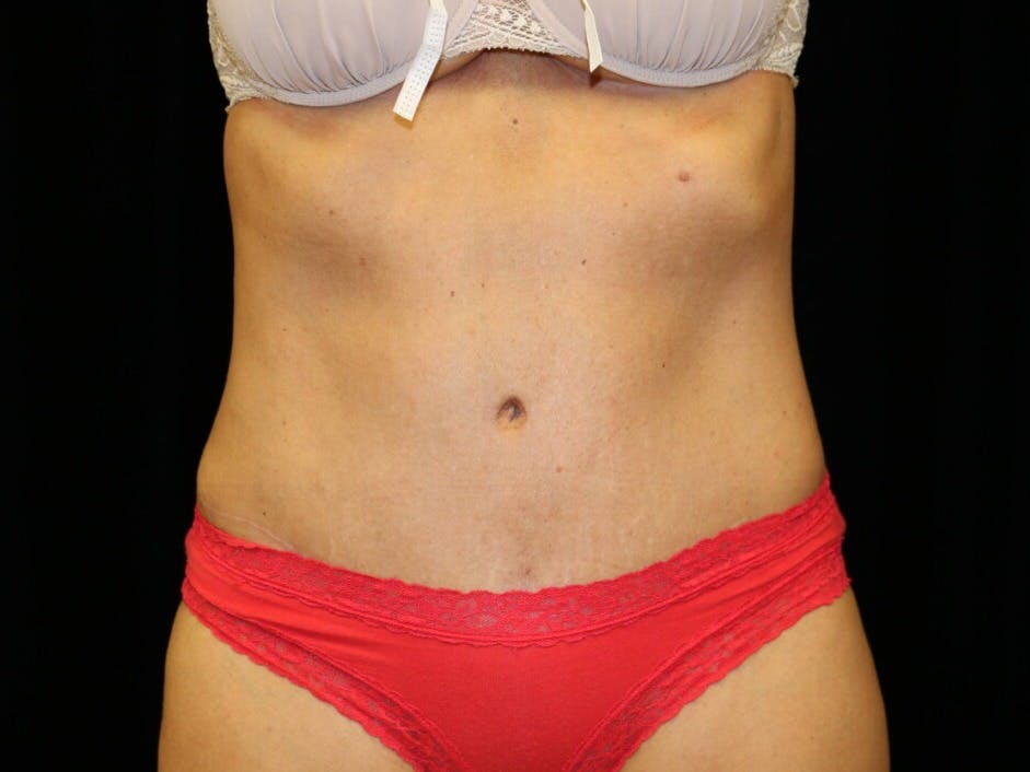 Tummy Tuck Gallery - Patient 39227039 - Image 2