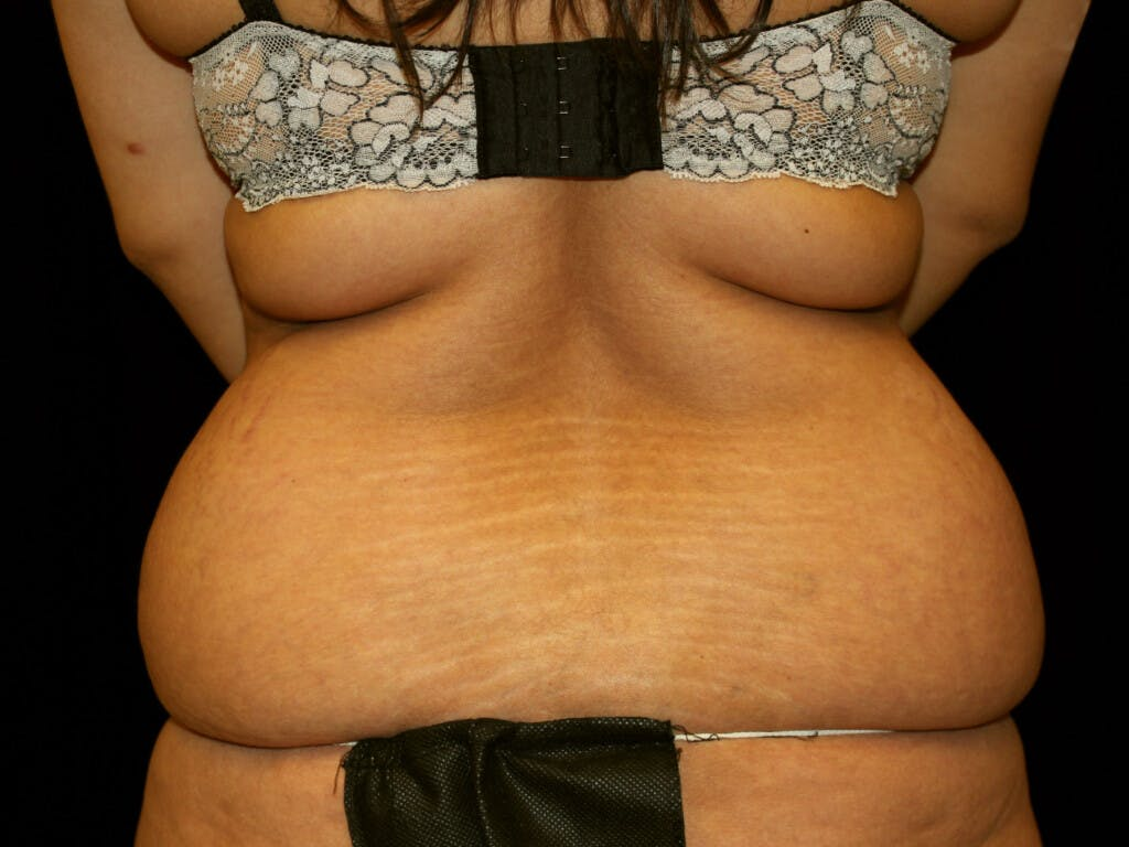Liposuction Gallery - Patient 39227032 - Image 1