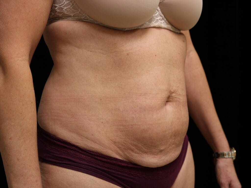 Tummy Tuck Gallery - Patient 39227039 - Image 3