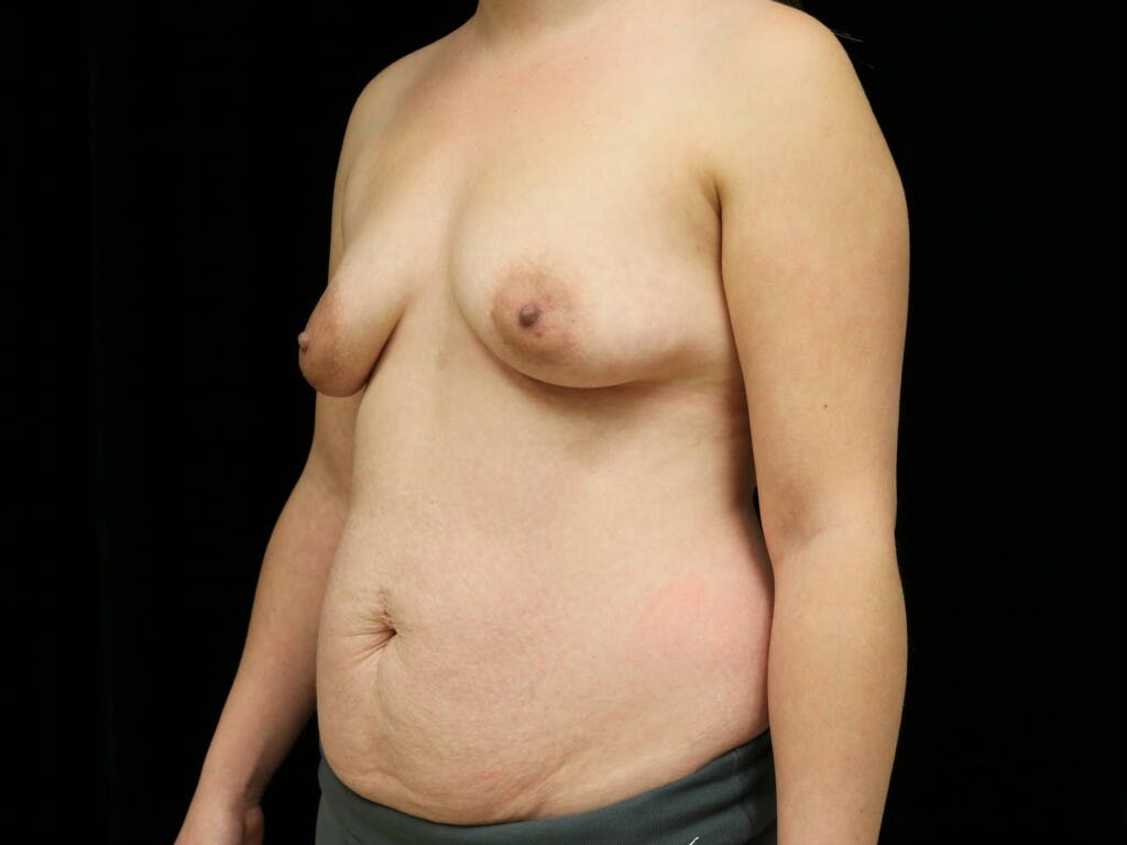 Mommy Makeover Gallery - Patient 39227035 - Image 5