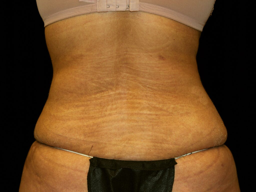 Liposuction Gallery - Patient 39227032 - Image 2