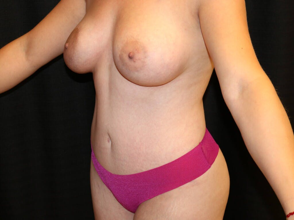 Mommy Makeover Gallery - Patient 39227035 - Image 6