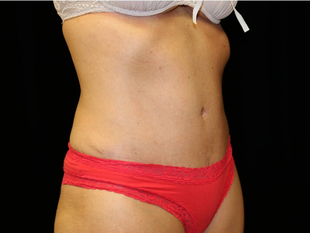 Tummy Tuck Gallery - Patient 39227039 - Image 4