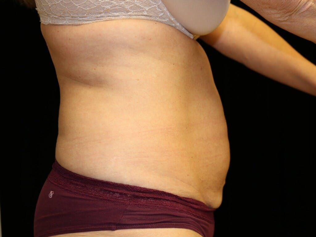 Tummy Tuck Gallery - Patient 39227039 - Image 5