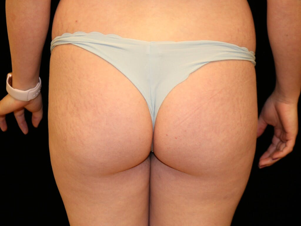 Mommy Makeover Gallery - Patient 39227035 - Image 9