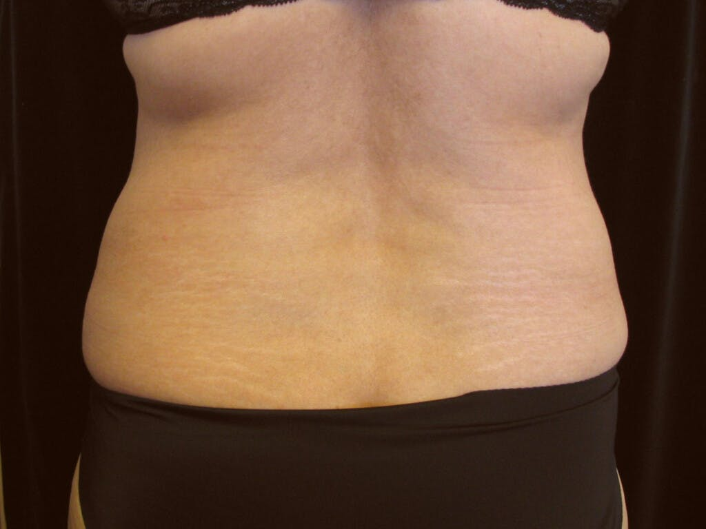 Liposuction Gallery - Patient 39227037 - Image 1