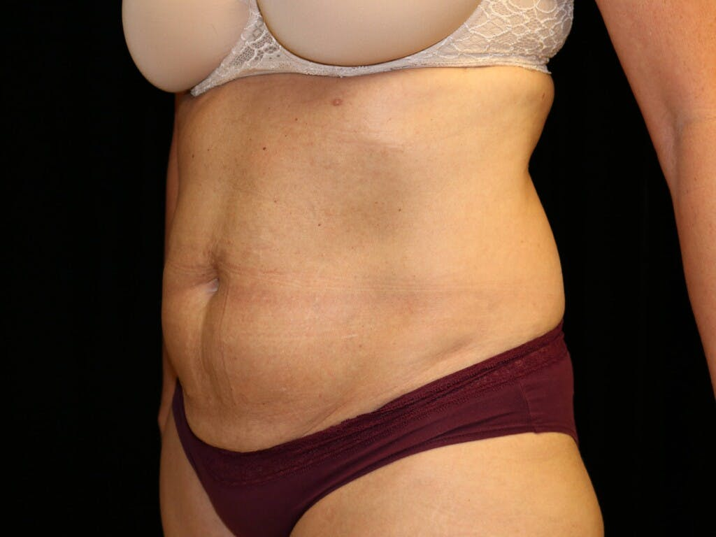 Tummy Tuck Gallery - Patient 39227039 - Image 7