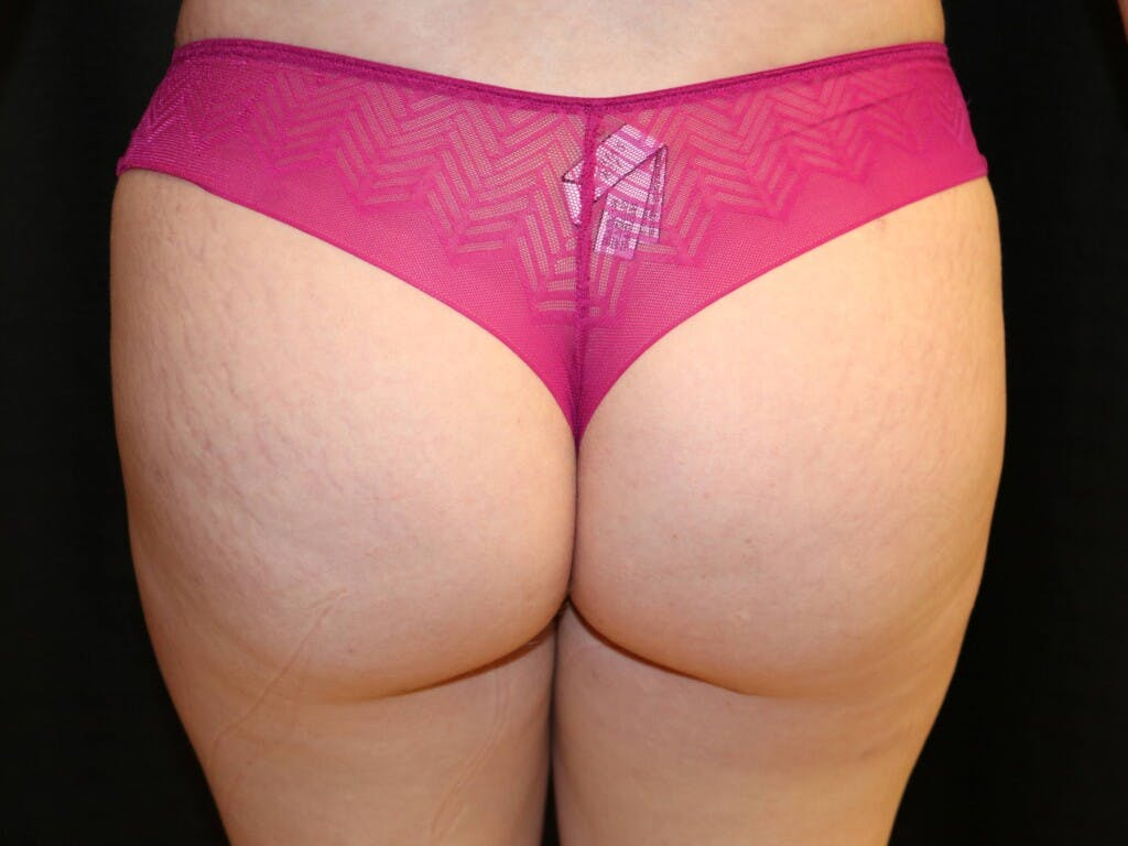 Mommy Makeover Gallery - Patient 39227035 - Image 10