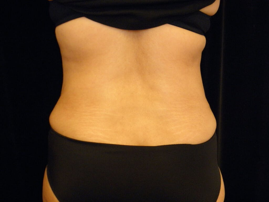 Liposuction Gallery - Patient 39227037 - Image 2