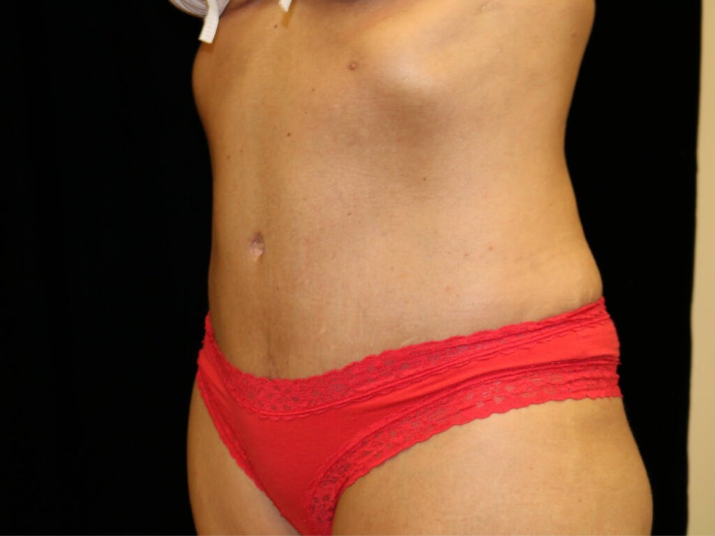 Tummy Tuck Gallery - Patient 39227039 - Image 8