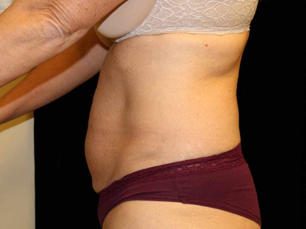 Tummy Tuck Gallery - Patient 39227039 - Image 9