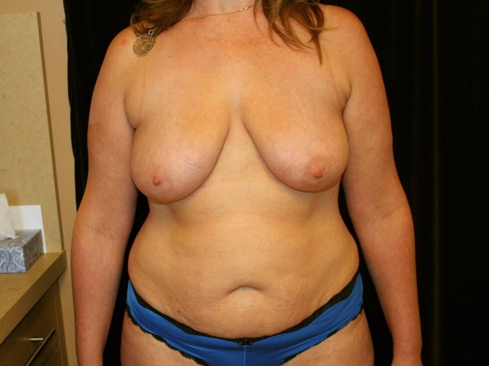 Mommy Makeover Gallery - Patient 39227043 - Image 1
