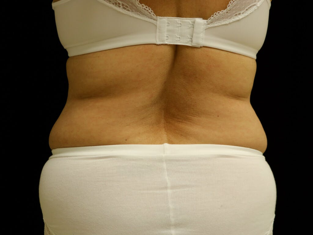 Liposuction Gallery - Patient 39227041 - Image 1