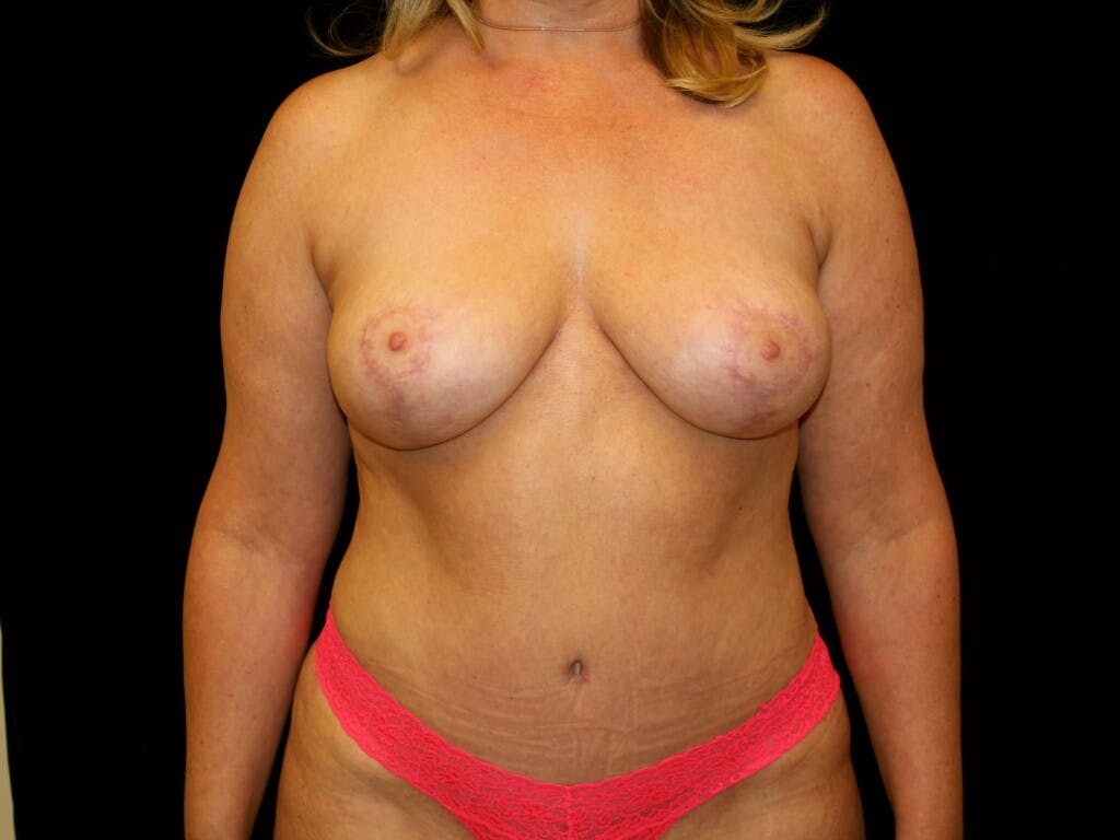 Mommy Makeover Gallery - Patient 39227043 - Image 2