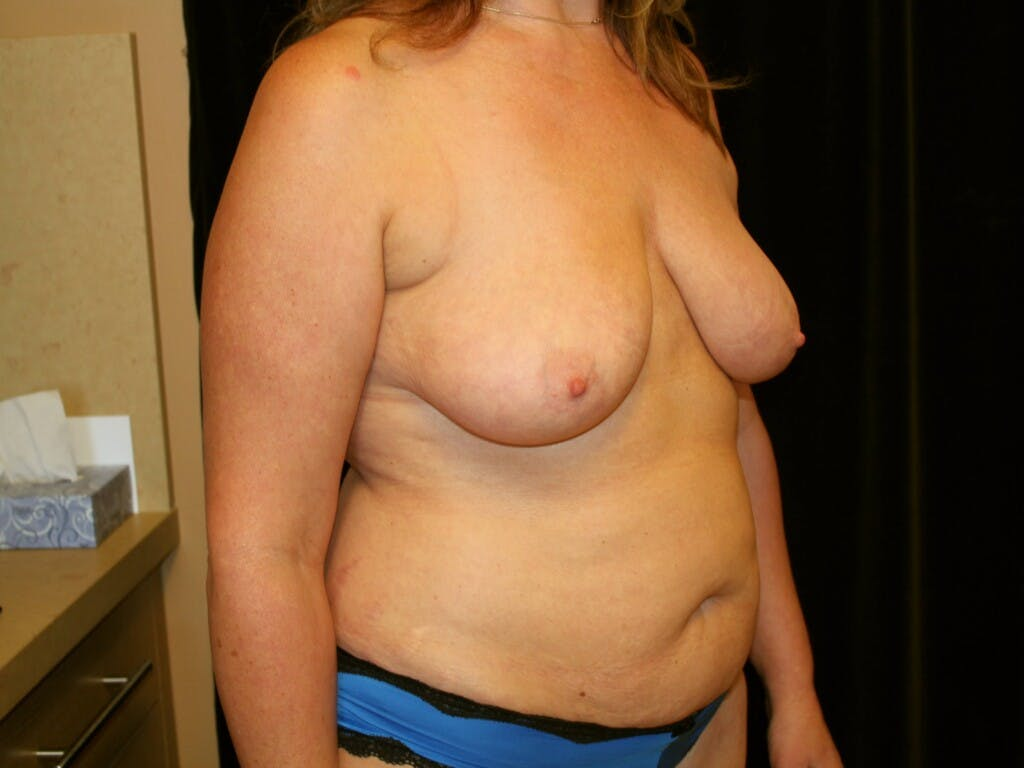Mommy Makeover Gallery - Patient 39227043 - Image 3