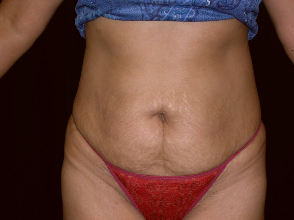 Tummy Tuck Gallery - Patient 39227045 - Image 1