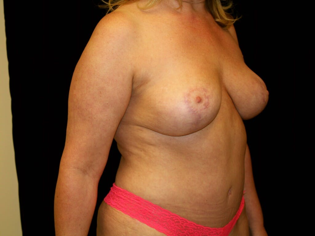 Mommy Makeover Gallery - Patient 39227043 - Image 4