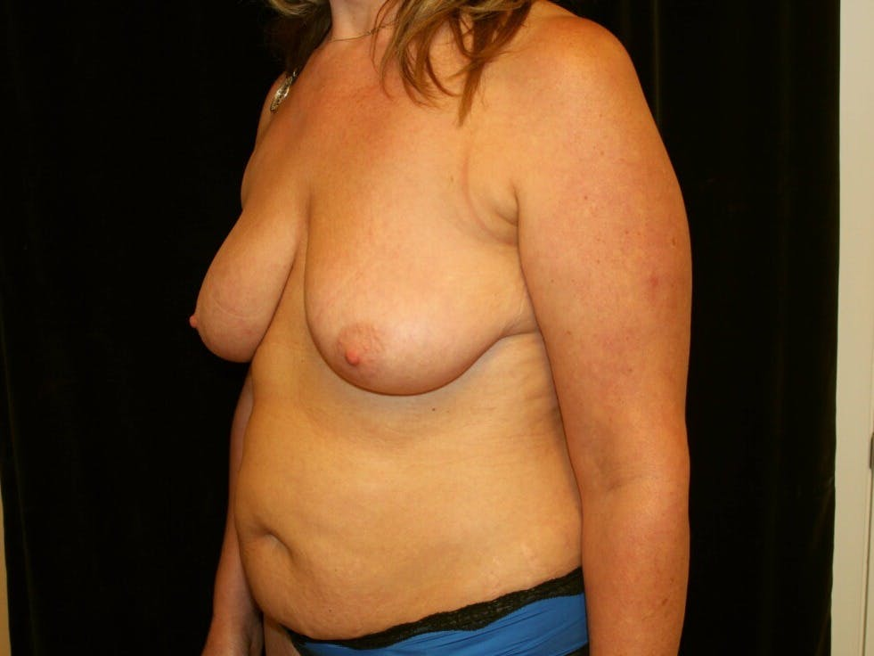 Mommy Makeover Gallery - Patient 39227043 - Image 5
