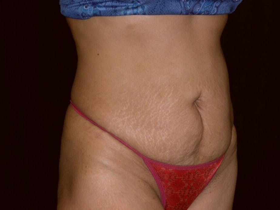 Tummy Tuck Gallery - Patient 39227045 - Image 3